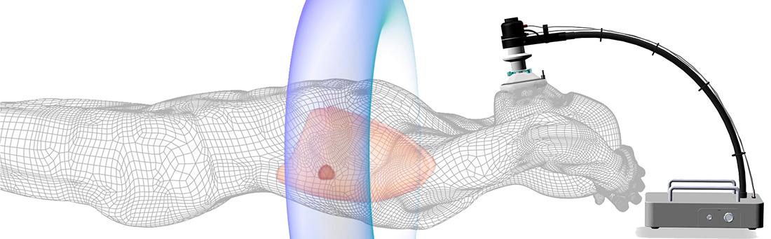 SDX® Free Breathing Method